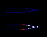 rövidlátás kevesebb, mint 6 dioptria)