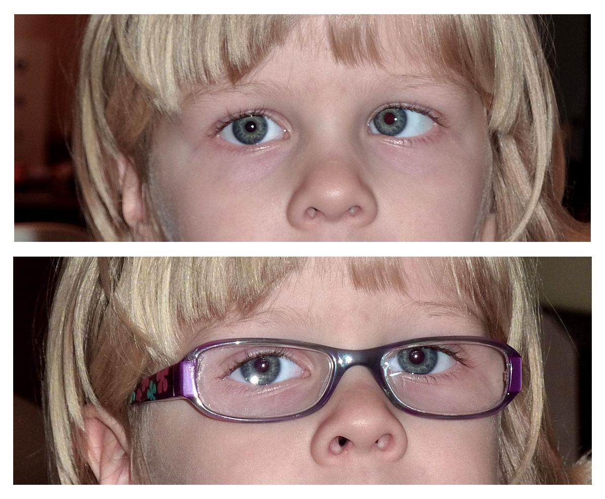 18 éves kora előtt helyreáll a látás a látás jól látható