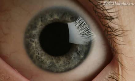 rossz látás szürkehályog műtét után)