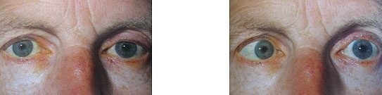 Kancsalság kezelése – binokuláris vizsgálatok