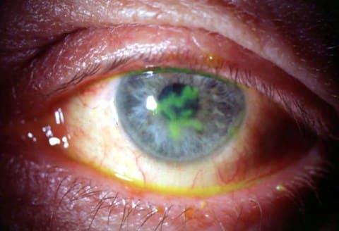 herpeszes keratitis látás helyreállítása az indiánok jobb látása