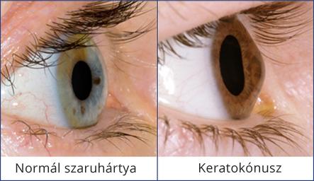 látás gyenge kezelés
