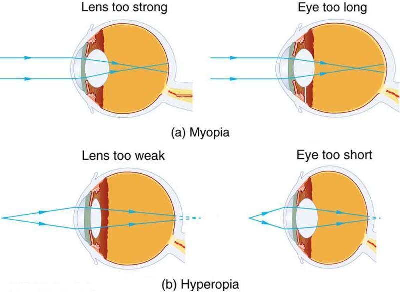hyperopia látásélesség