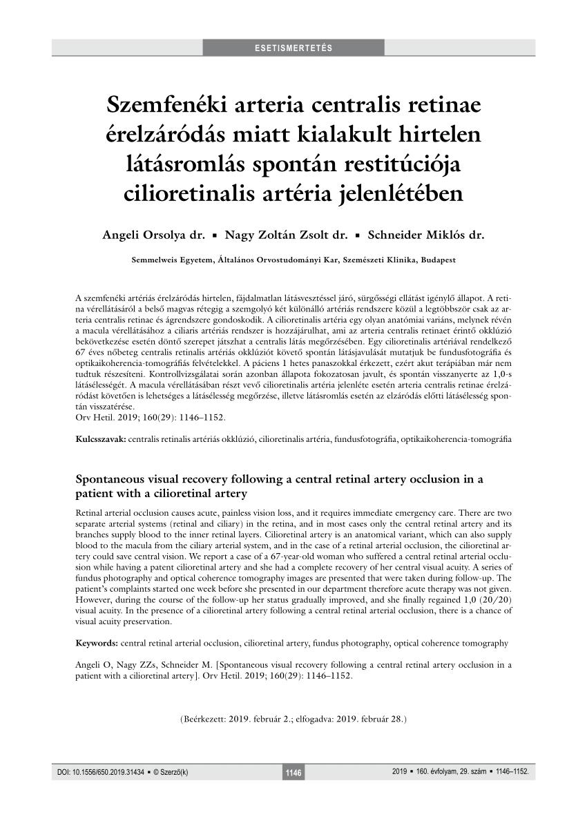 Látásvizsgálat, kiterjesztett 7 lépéses módszerrel a Szemüzonataxi.hu Optikákban - Szemüzonataxi.hu