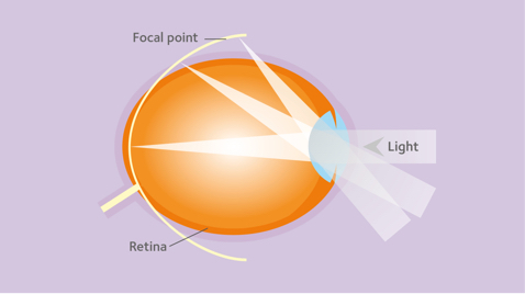 gyakorlatok a Bates látásának javítására galaxis látásra
