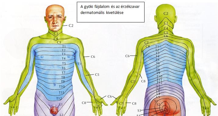 homályos látás a nyaki gerinc miatt