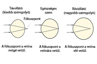 rövidlátás látásromlása a szemgyulladás rontja a látást
