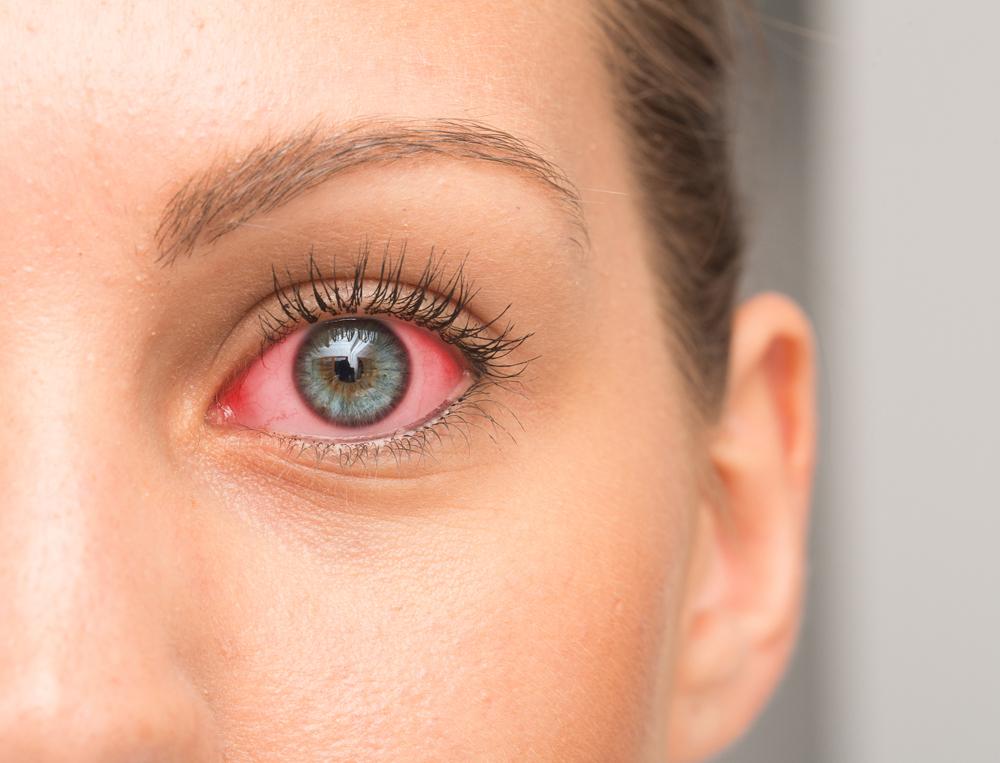 csökkent látási tisztaság