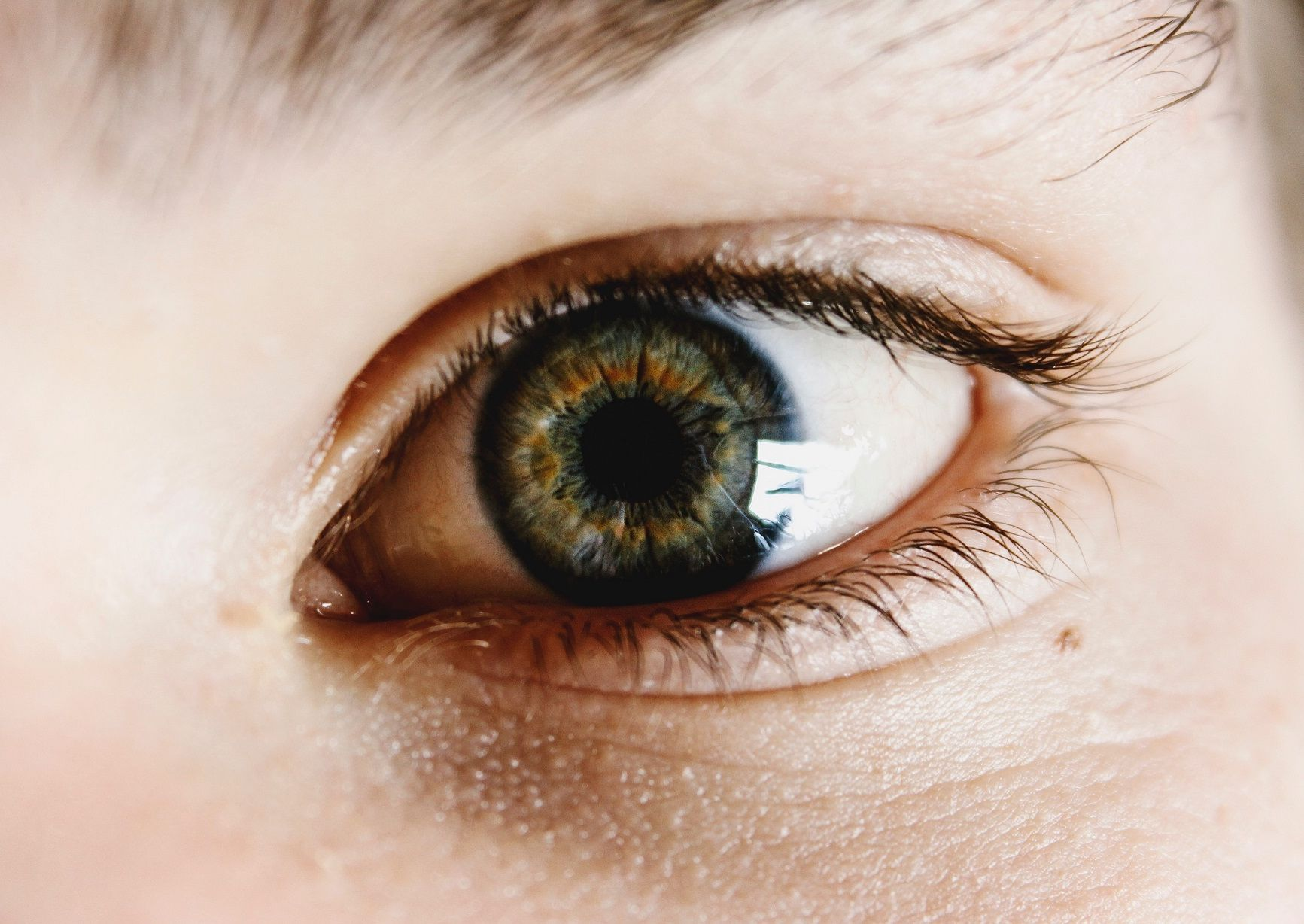 Myopia és asztigmatizmusom van