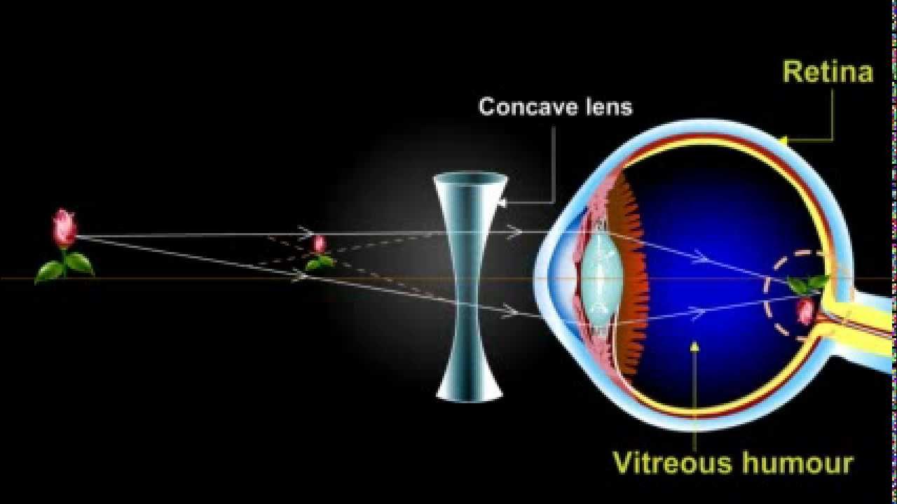 myopia with)