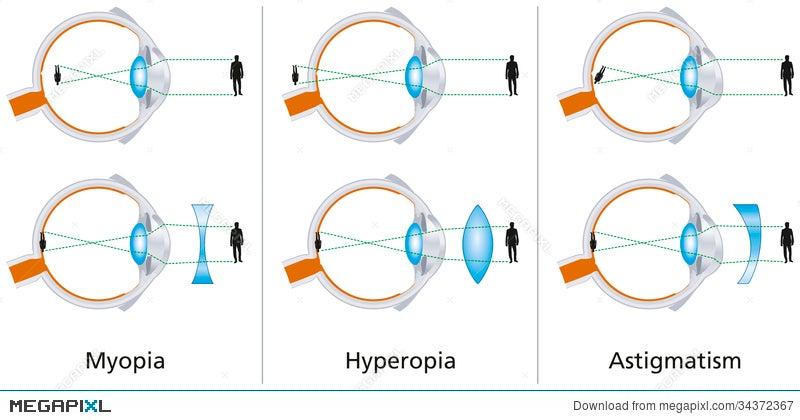 myopia hyperopia astegmatism