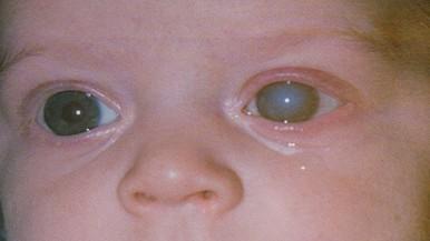 Glaukóma, azaz zöldhályog – minden, amit tudnia kell a vakság kialakulásának második legfőbb okáról