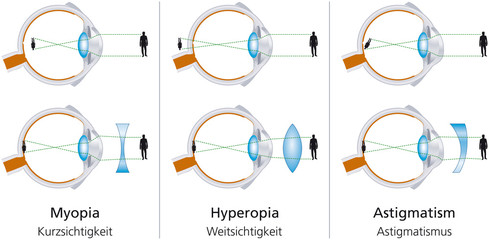 hyperopia myopia astigmatizmus)