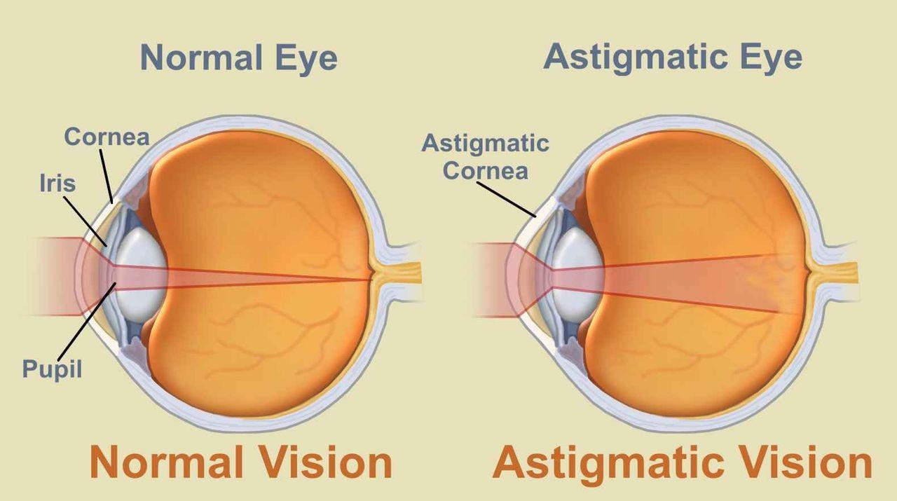 mi a rövidlátás és az asztigmatizmus