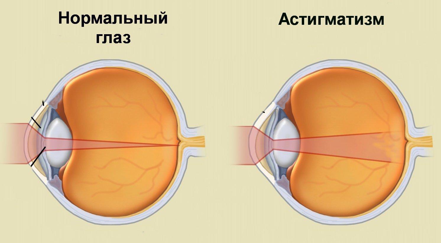 Gyakorlatok a szemekbe az asztigmatizmusban