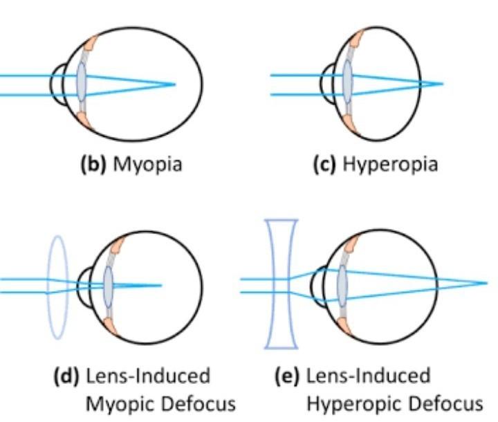 a szem myopia és hyperopia a látásélesség függ