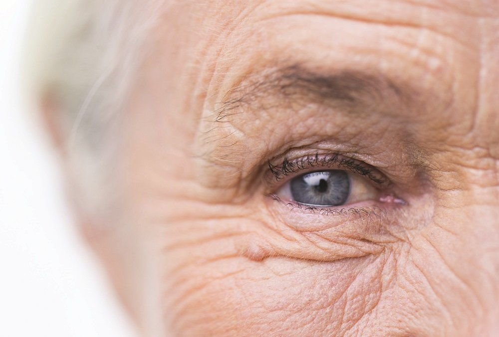 rövidlátás a szem szürkehályog műtétje után