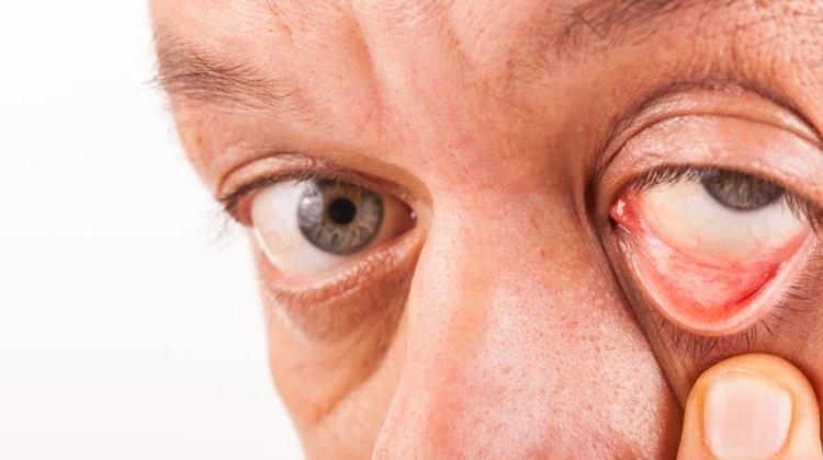 Fényes körök szem előtt, mint egy szemészeti betegség tünete