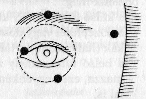 Rövidlátás szem torna segít
