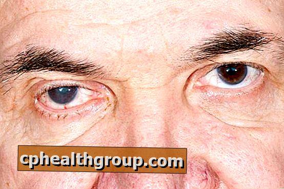 látási és szemproblémák látótér kerülete