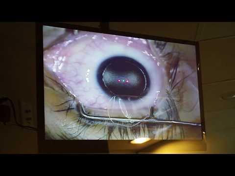 hogyan történik a látásjavító művelet)