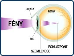 erőteljes gyakorlatok a látás helyreállítására)