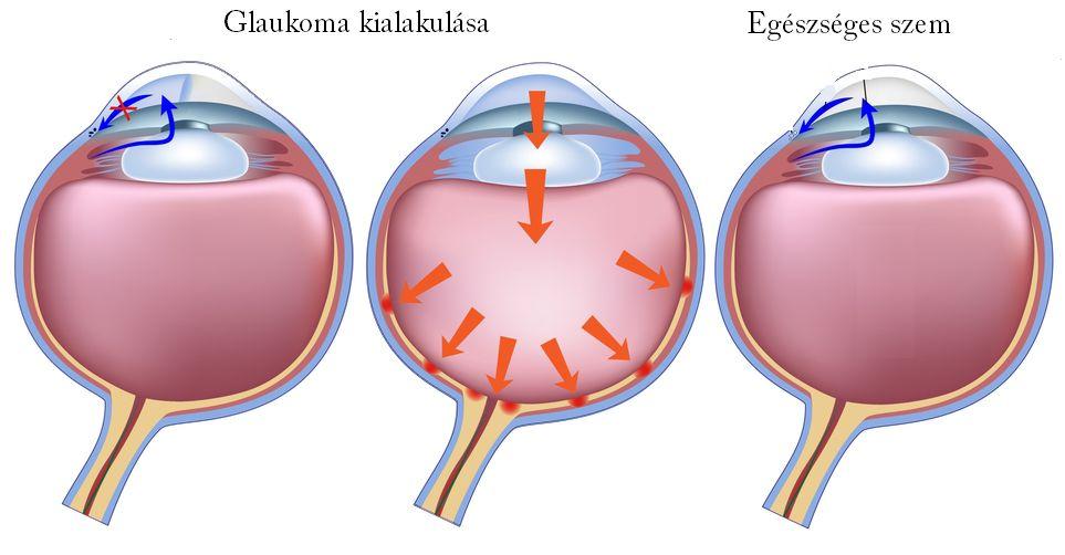 szembetegségek myopia és