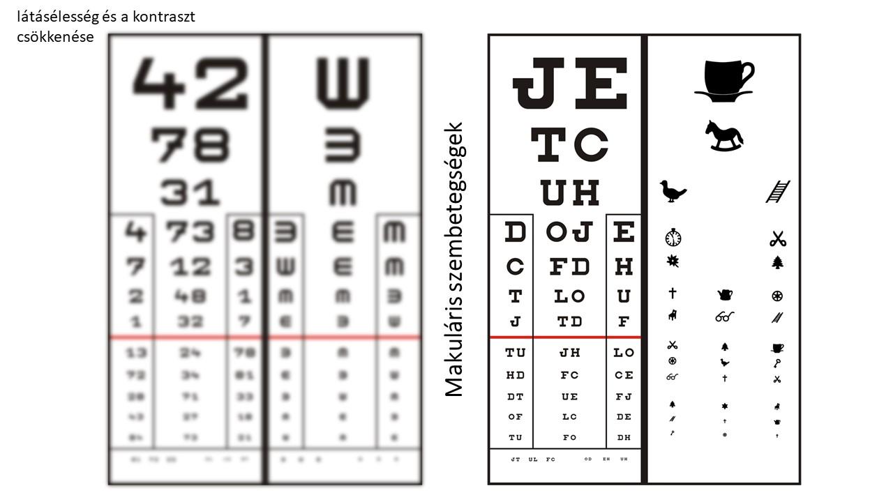 rövidlátás uralja a normális látást