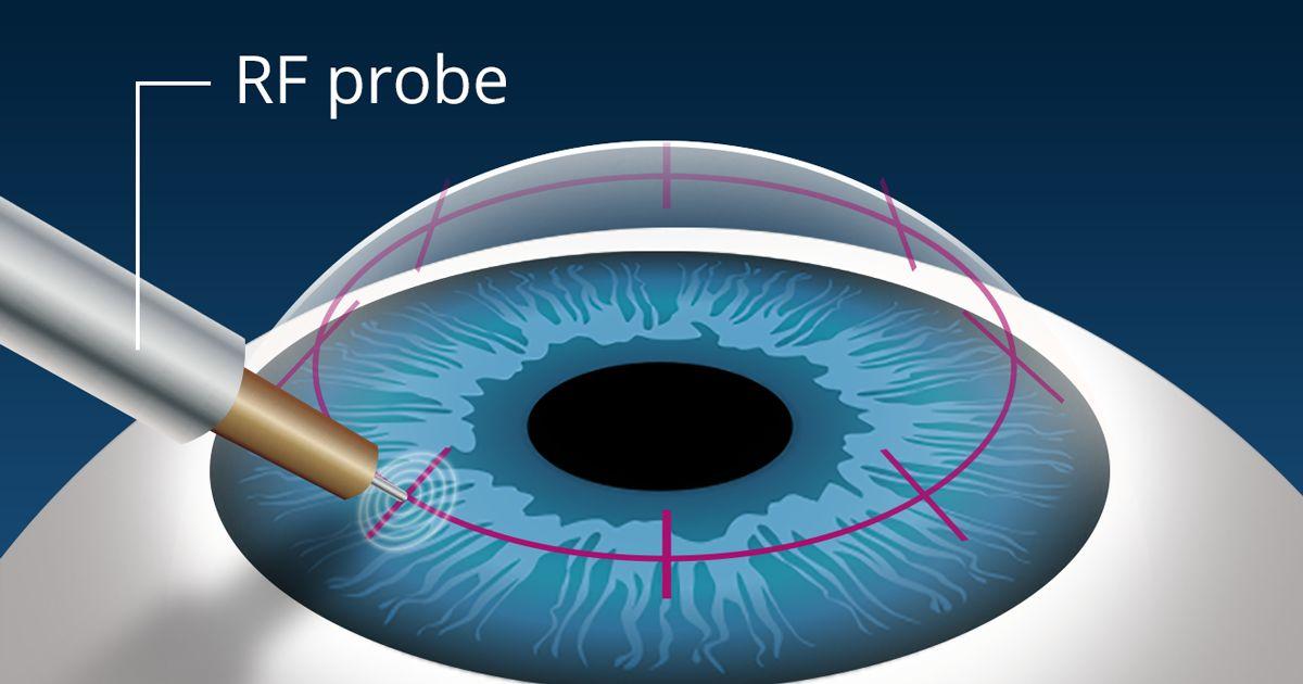 mínusz látásvizsgálat végezzen műveleteket a látás javítása érdekében