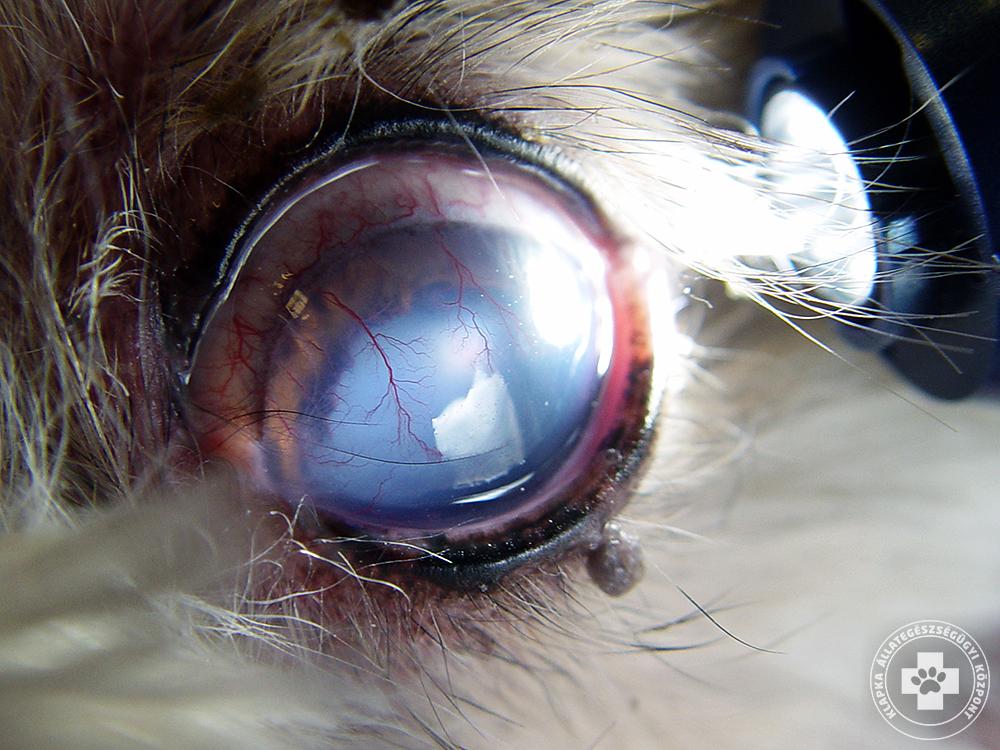 látás uveitis után elveszíti a látását egy fog miatt