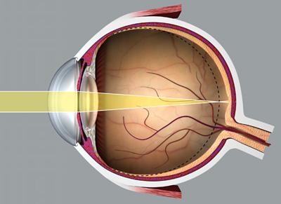 szem myopia kezelése)