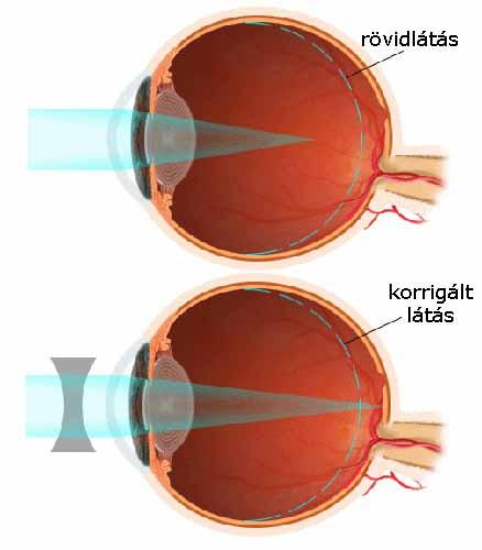 látási probléma rövidlátás