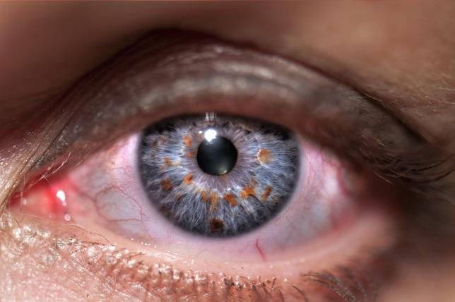 Рубрика: Száraz szem kezelés