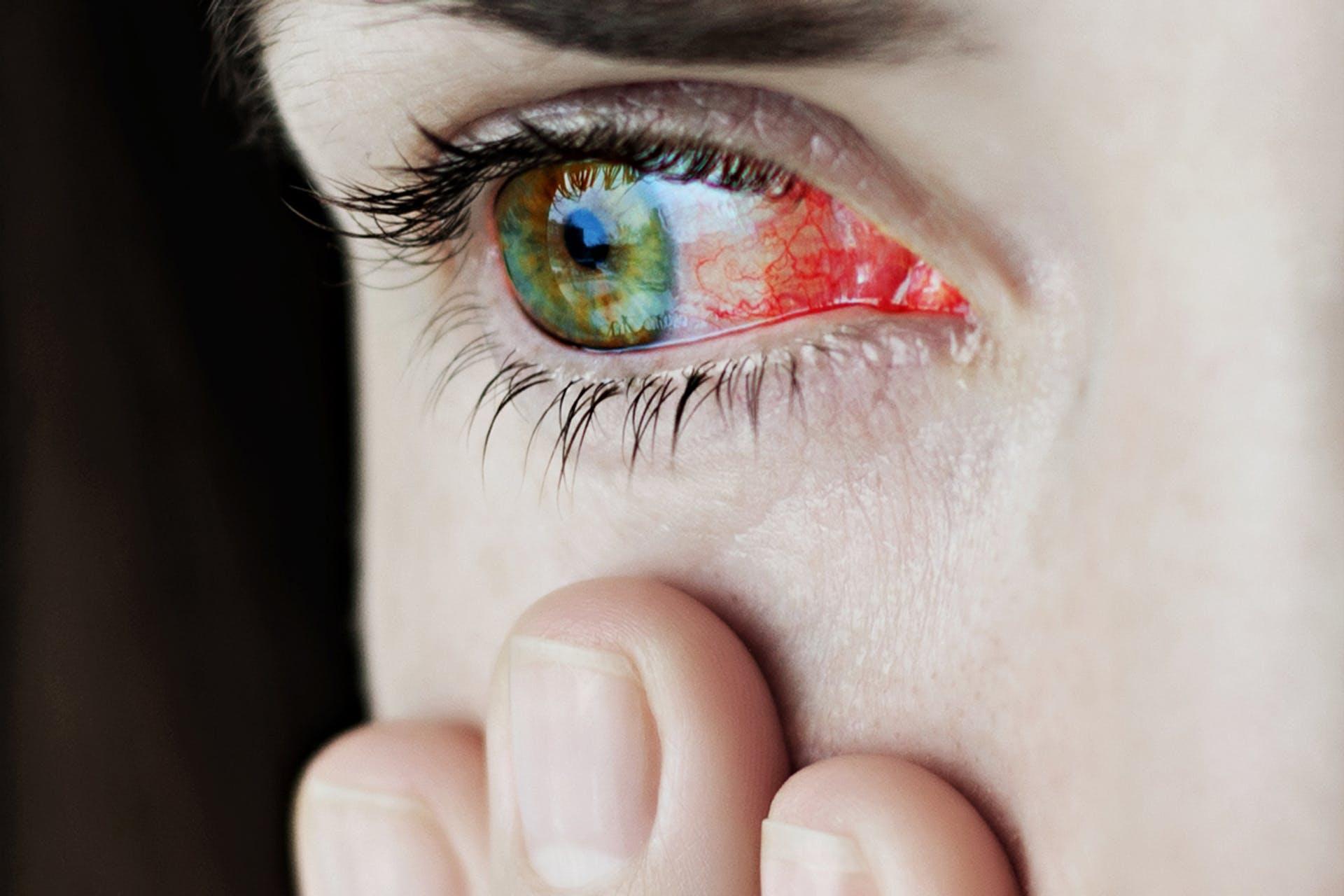 kitágult pupilla rossz látással)