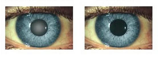 a látószervek veleszületett patológiáinak oka a nők és a férfiak látási jellemzői