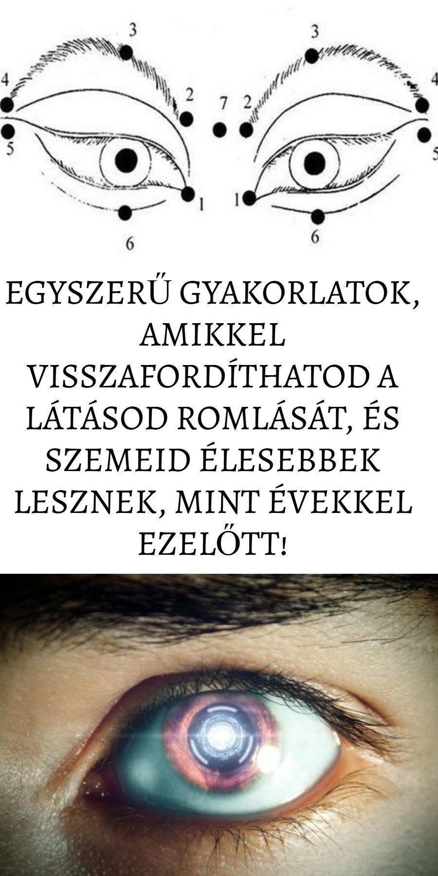 a látás romlott plusz)