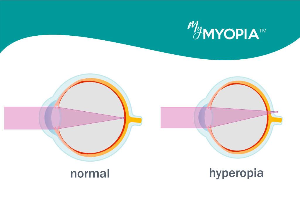 Hyperopia egy év alatti gyermekeknél. Hypermetropia gyermekeknél - mi ez?