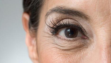 a rossz látás miatti szem ráncok