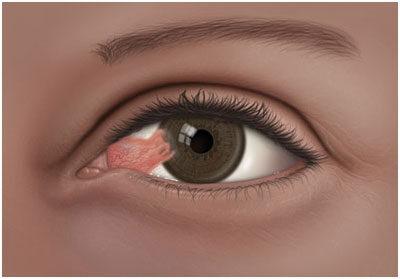 különböző látás a szemekben a műtét után)