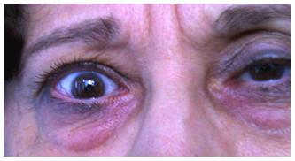 A száraz szem korunk betegsége   Csalázonataxi.hu