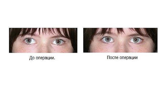 szokatlan látásbetegségek)