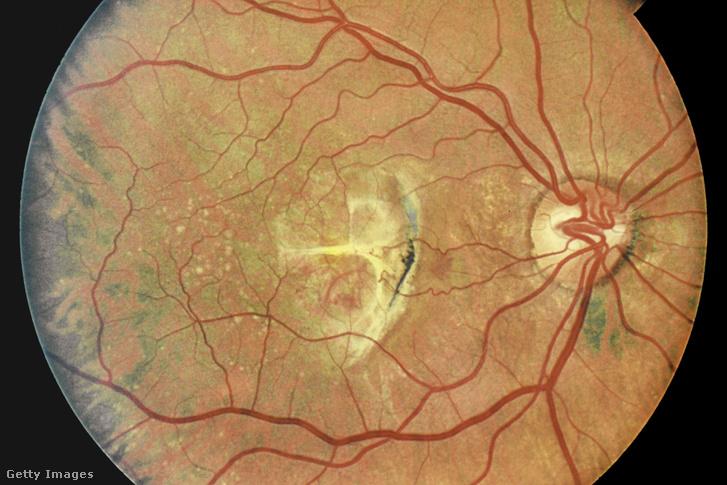 a látást idegek károsítják