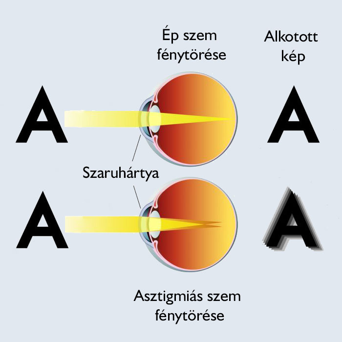 A látás központi idegrendszeri folyamatai