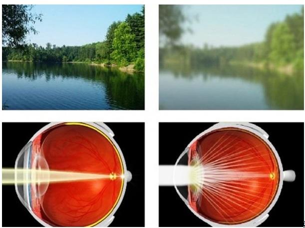 a látás nem romlik