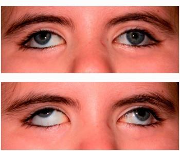 a szem gyakorlása helyreállítja a látást a vadkacsák látása