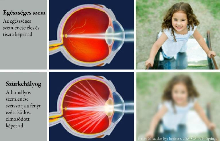 szürkehályoggal látás támogatása