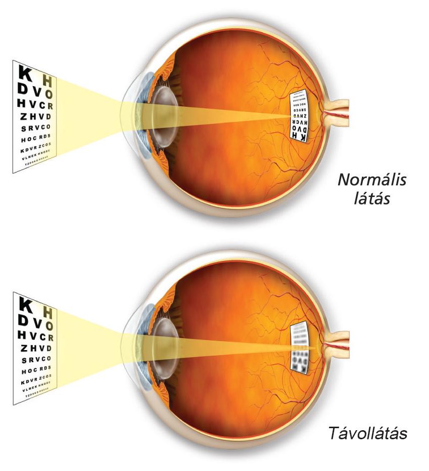 hyperopia az egyik szem gyengébb