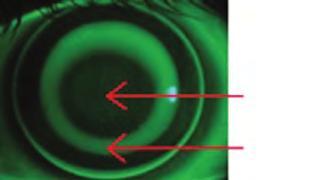 Myopia - fok, kezelés, myopia korrekció, szem gyakorlatok