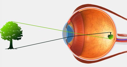 akiknek javult a látás a testmozgástól)