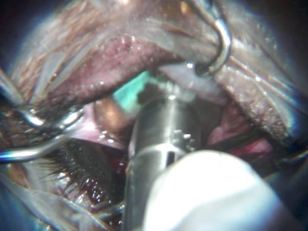 német szemészeti kezelés szaruhártya-átültetés